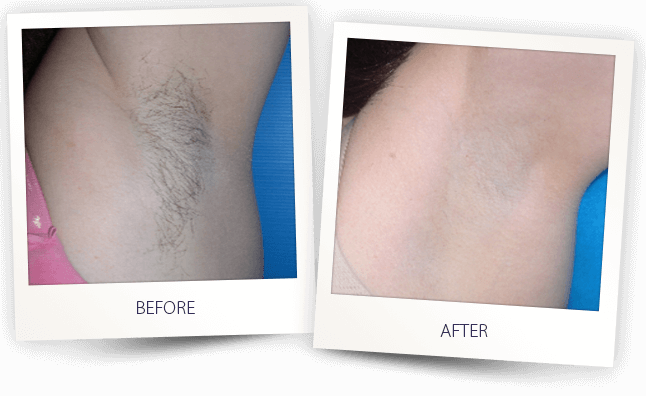 laser hair removal supersmooth before and after