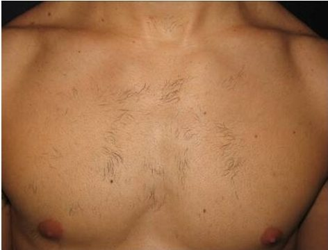 supersmooth laser hair removal male results