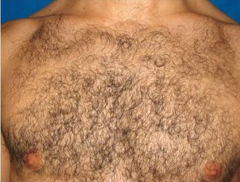 supersmooth laser male before